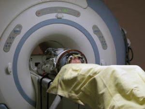 Global MR-Guided High-Intensity Focused Ultrasound System Market