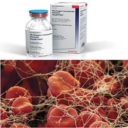 Fibrinogen Concentrate
