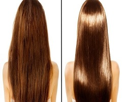 Hair Loss&growth Treatments and Products Sales