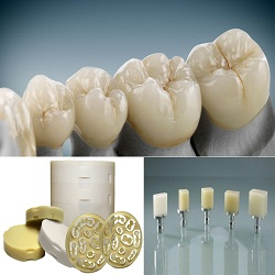 Hybrid-Ceramic Dental CAD/CAM Material Consumption